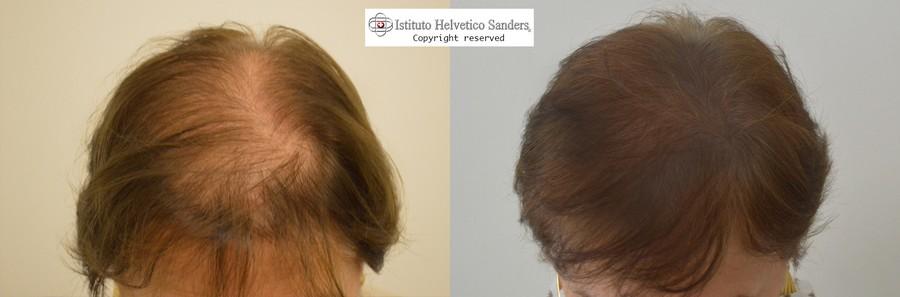 risultato del trapianto capelli su alopecia femminile · autotrapianto  capelli donna 3d77828dbb4a