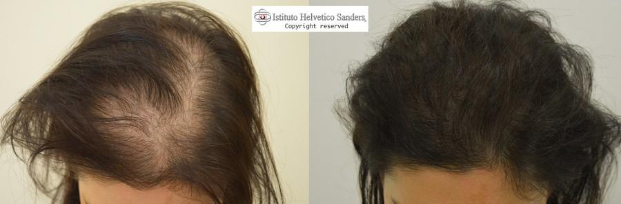 Il trapianto capelli nella donna  i vantaggi - Sanders b566140ccf3c