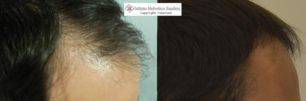 trattamento capelli e cute grassa