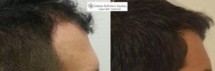 laterale trapianto capelli