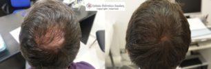 istituto helvetico sanders cliente prima e dopo trapianto