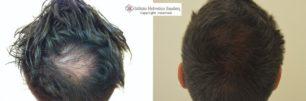 autotrapianto capelli vertice Istituto helvetico sanders