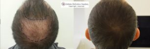 trapianto capelli vertice italia
