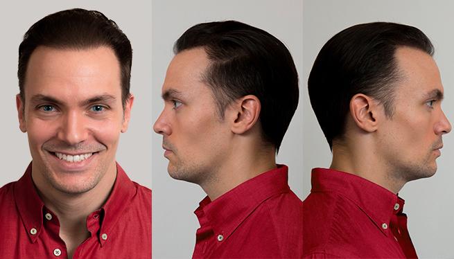 autotrapianto capelli Filippo