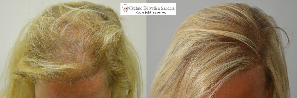 Il trapianto capelli nella donna: i vantaggi - Sanders