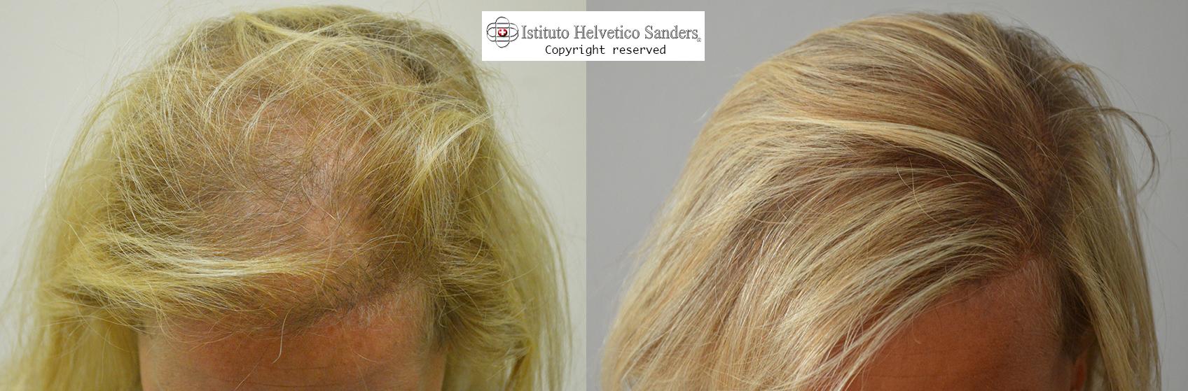 Trapianto capelli donne napoli