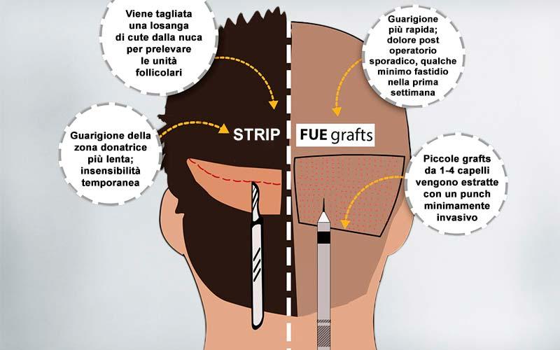 Trapianto di capelli con tecnica FUE Strip