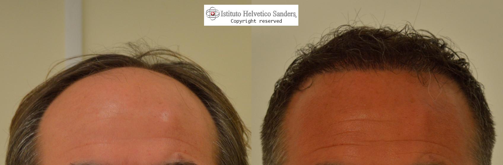 Trapianto capelli con tecnica FUE linea frontale