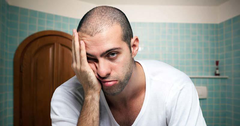 Prodotti per la caduta dei capelli uomo