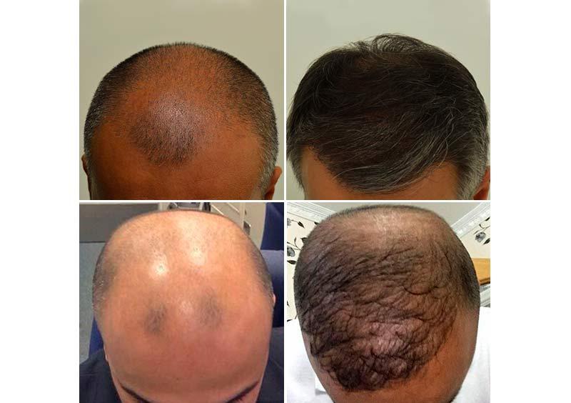trapianto capelli turchia esperienze negative
