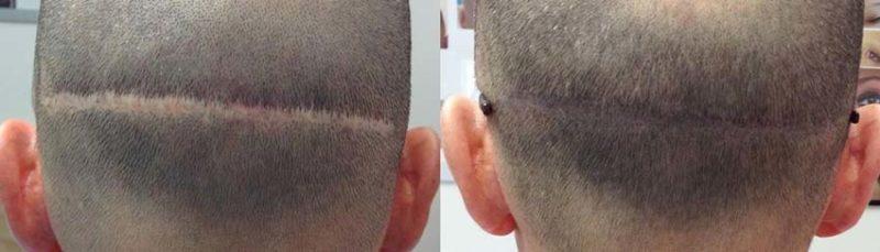 tricopigmentazione cicatrice