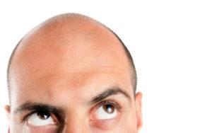 Problema caduta capelli