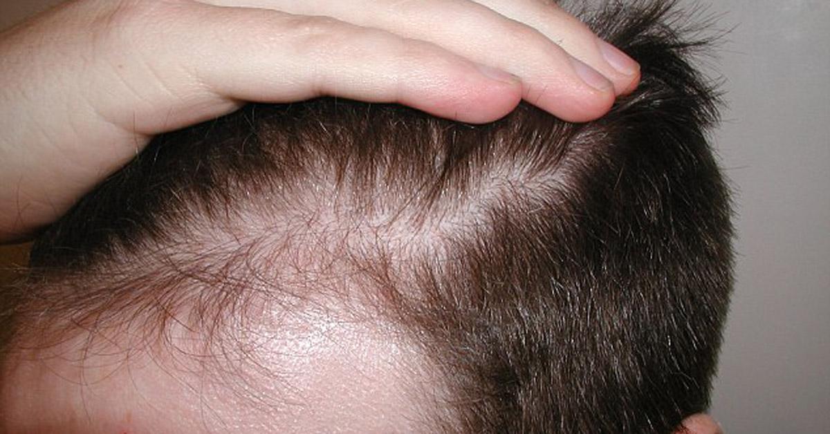 Caduta capelli uomo 30 anni
