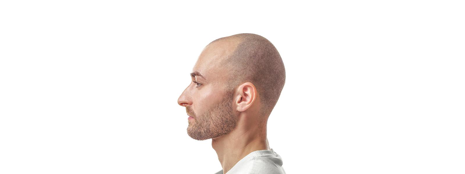 Cura ormonale capelli uomo