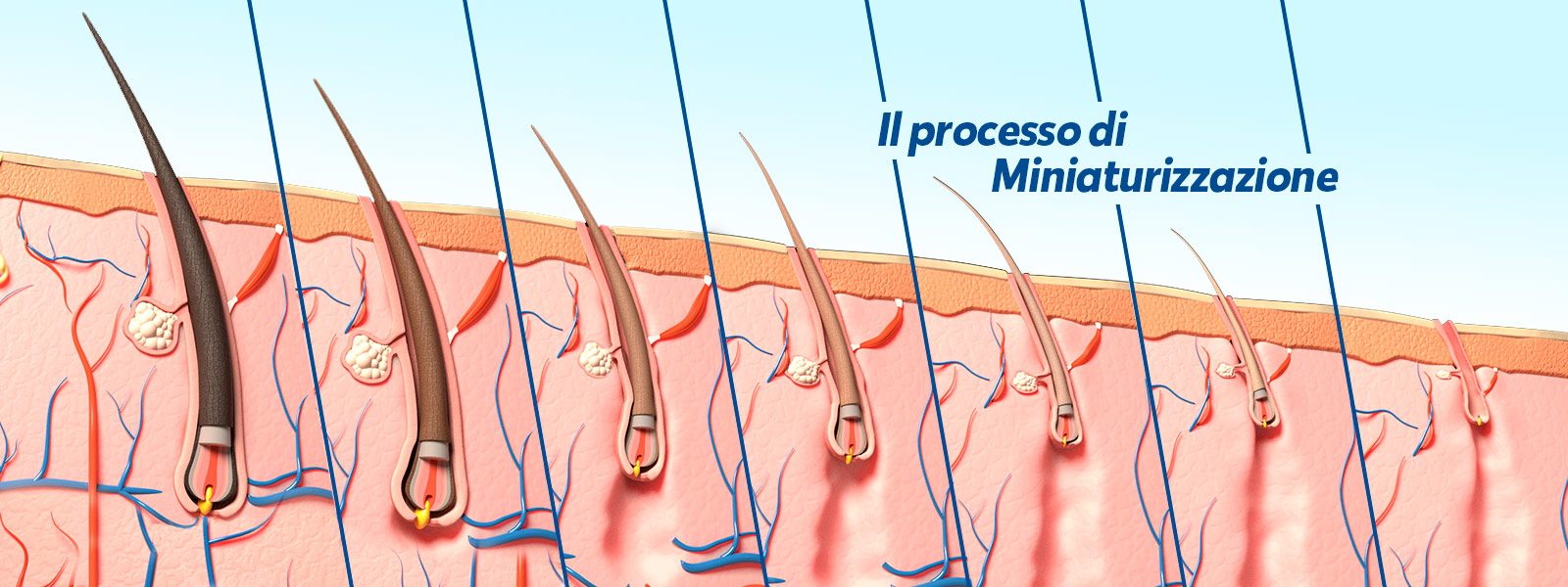 Alopecia Androgenetica: cos'è e chi colpisce - Istituto ...