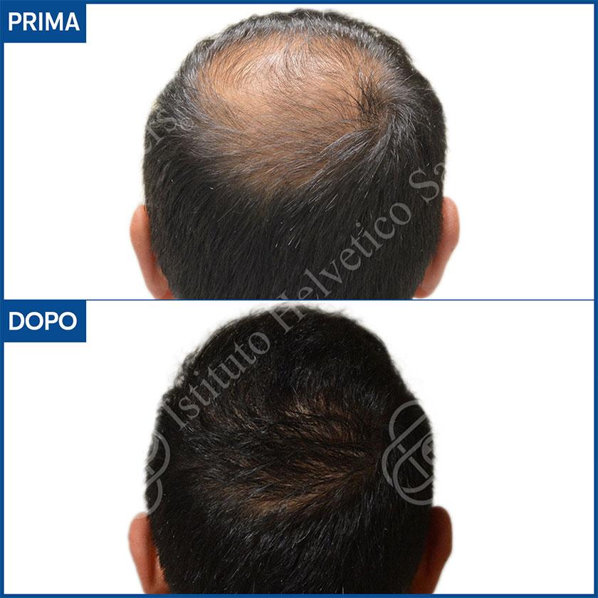 Risultato trapianto capelli