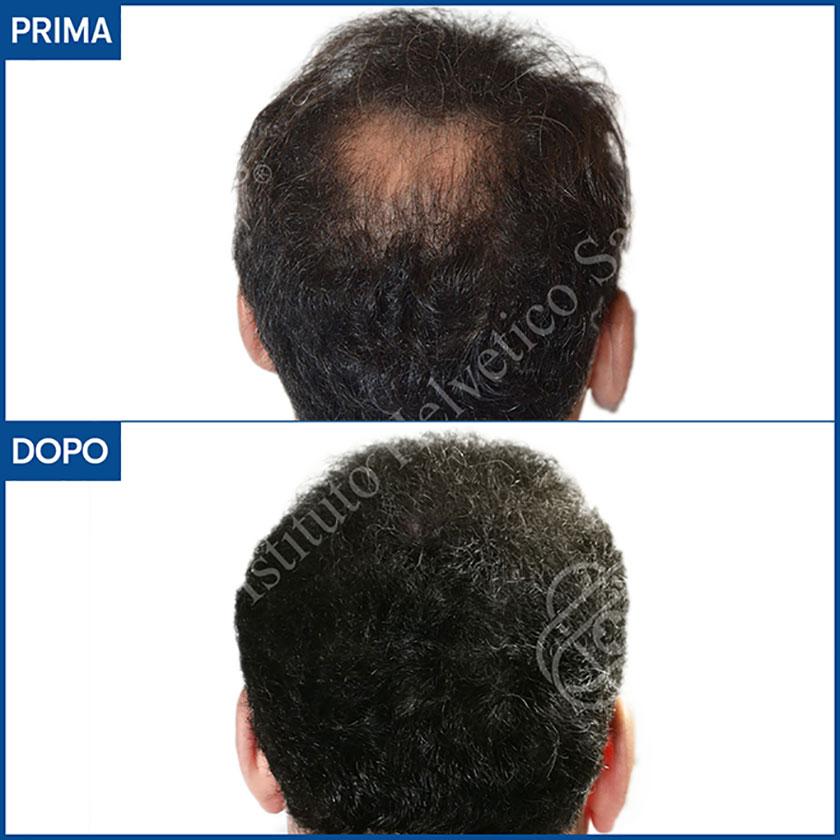 prima e dopo il trapianto capelli