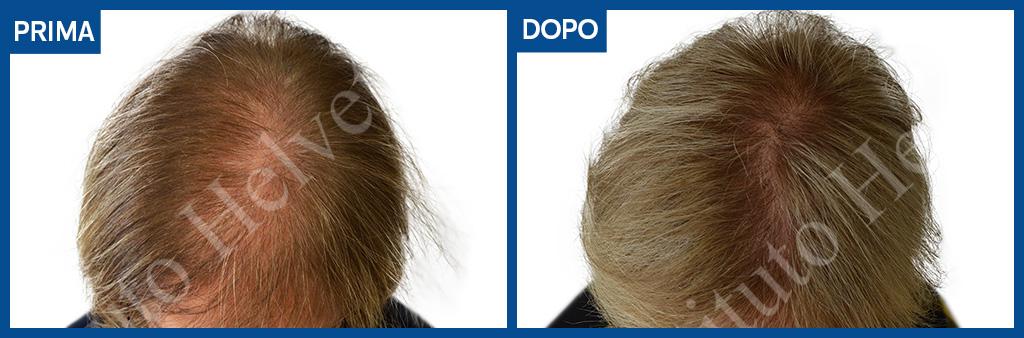 prima e dopo trapianto capelli donna