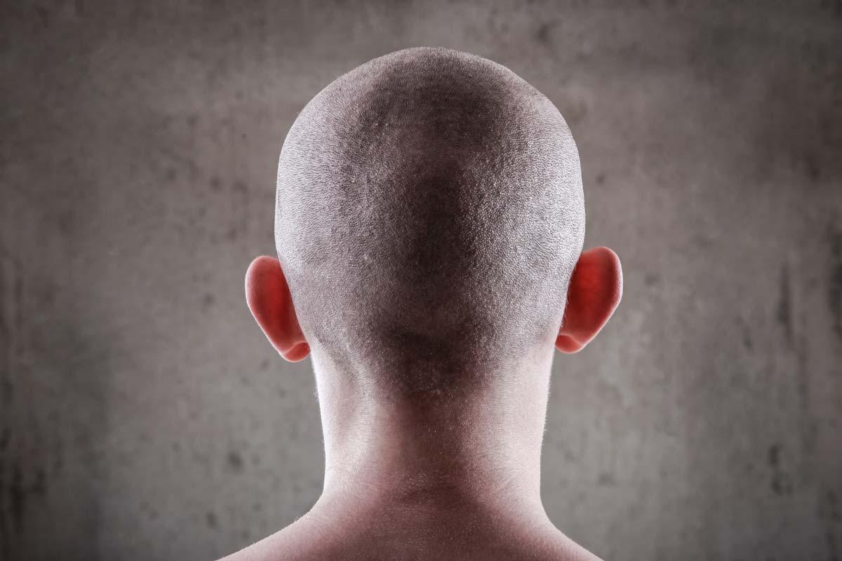 alopecia universale si guarisce