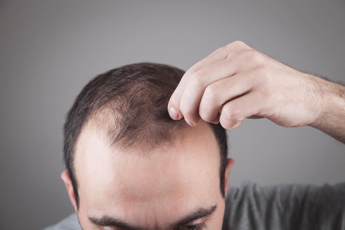 Rimedi per l'alopecia
